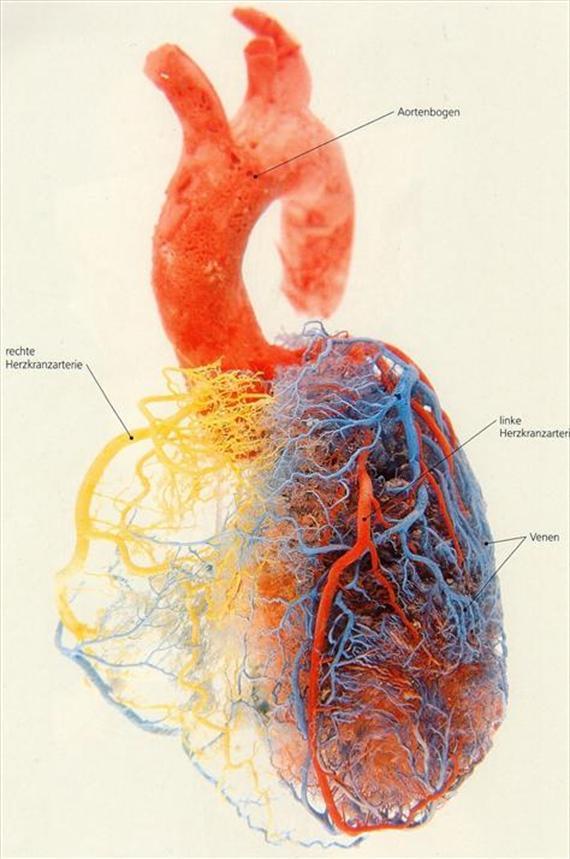 Versorgung Akutes Coronarsyndrom Acs Herzinfarkt Team